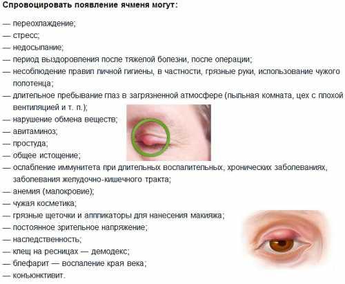 ячмень на глазу: почему возникает и как с ним бороться